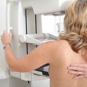 Dépistage du cancer du seinUne campagne trompeuse