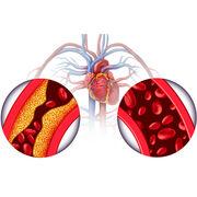 HypertensionCertains médicaments peuvent faire monter la pression