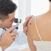 HypertensionL'hydrochlorothiazide associé à un risque de cancer de la peau