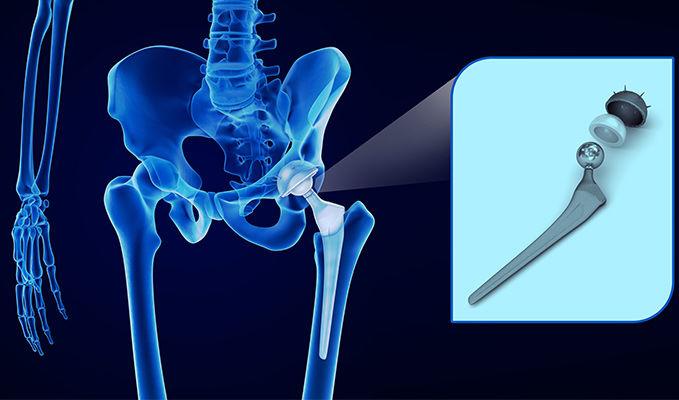 schèma prothese hanche