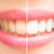 Blanchissants dentaires