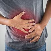 DiverticuliteMoins de chirurgie pour «l'appendicite à gauche»