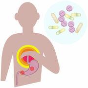 MédicamentComment arrêter un médicament antireflux