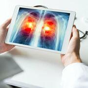 Cancer du poumonUn dépistage qui fait débat