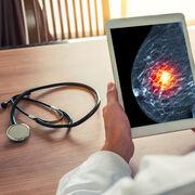 Cancer du sein - Les effets indésirables des anti-aromatase enfin reconnus