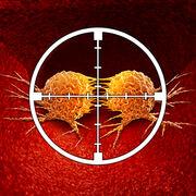 CancerQue peuvent les nouveaux traitements ?