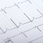 ÉlectrocardiogrammeUn examen indispensable pour le cœur