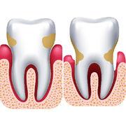 Gingivite et parodontiteQue valent les traitements des gencives ?