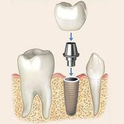 Implants dentairesMode d'emploi