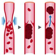 Thrombose - Les médicaments à risque